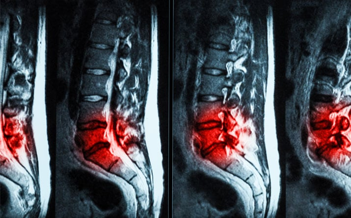 Images of Herniated Discs in the Lower Back - Better Health Chiropractic
